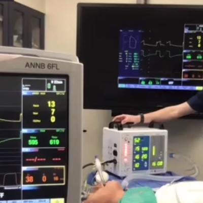 ventilator by nasa